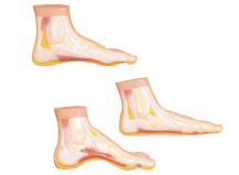 NORMAL AND ABNORMAL FOOT, SET OF 3