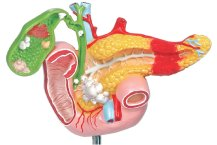 Gallbladder, Pancreas and Duodenum Diseases